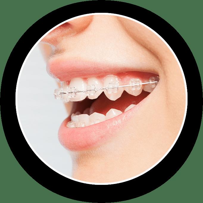 clear esthetic braces